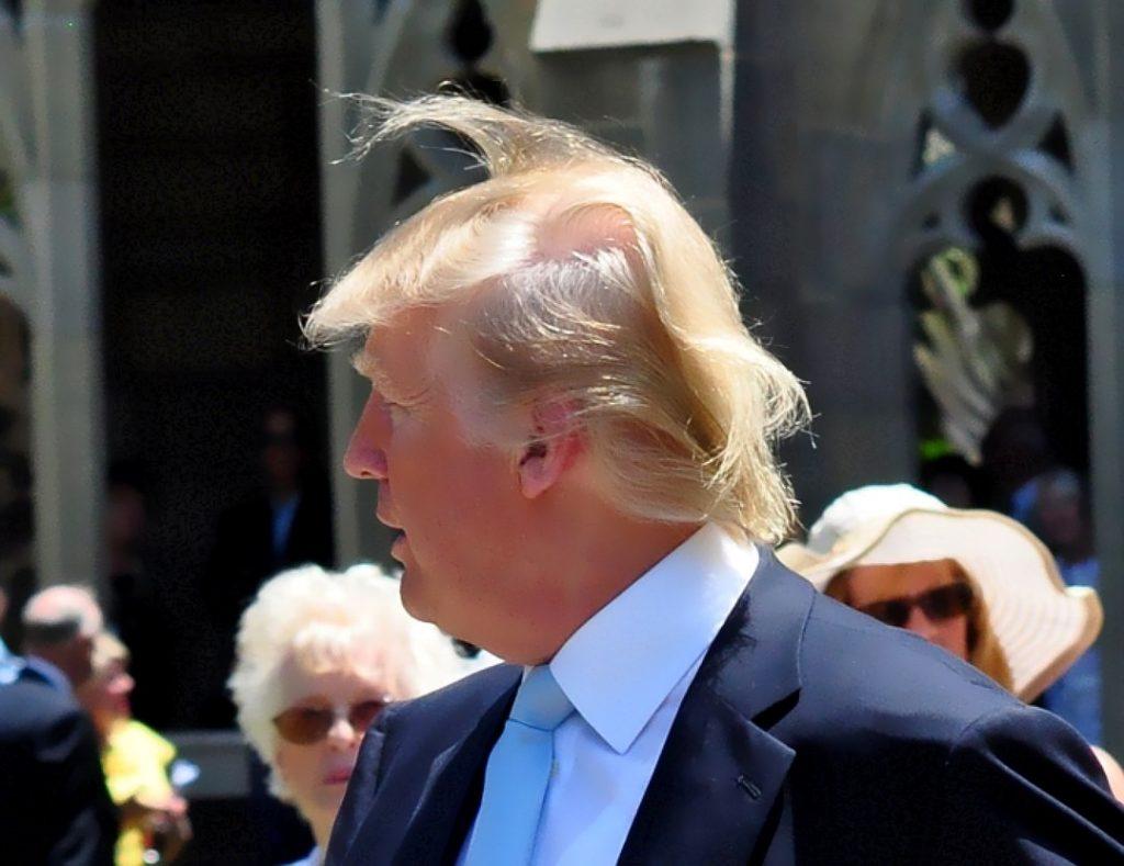 Перекрывание залысин волосами