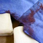 Фото 13: Пятна крови на одежде