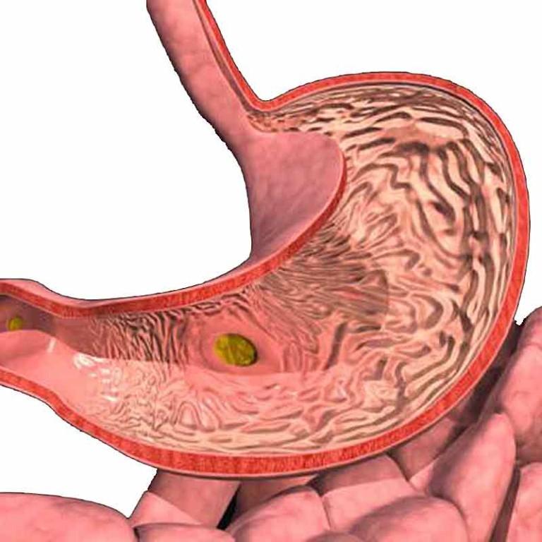 Диффузные изменения поджелудочной железы: симптомы