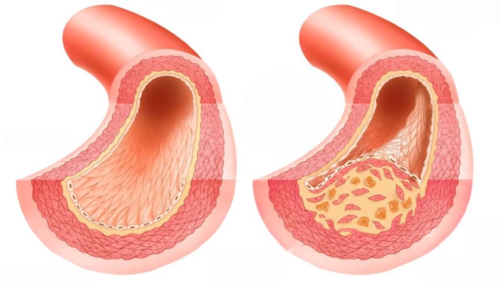 Атеросклеротическое поражение артерий