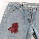 Фото 35: Кровь на джинсах